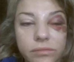 Избитая Екатерина Архарова